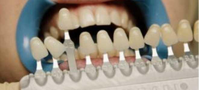Шкала Вита для определения цветов и оттенков белизны зубов