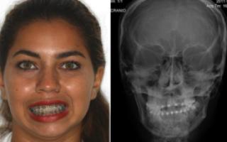 Анкилоз височно-нижнечелюстного сустава (ВНЧС): классификация, этиология, хирургическое лечение