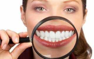 Вредно отбеливание зубов или безопасно: плюсы и минусы, за и против, отзывы
