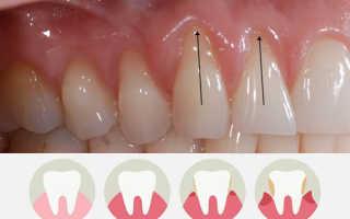 Зубы чешутся у взрослого – причины и методы устранения