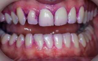 Индикатор зубного налета Динал, Curaprox, жидкость Президент и другие таблетки