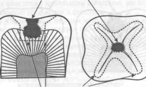 Этапы препарирования кариозных полостей, иммунные зоны зуба