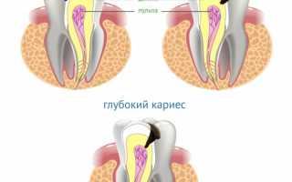 Диагностика кариеса – как распознать поверхностный, средний и глубокий патологический процесс