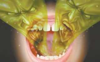 Причины несвежего дыхания и способы избавиться от плохого запаха изо рта