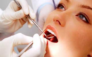 Стоматологические индексы состояния полости рта: гигиенические и пародонтальные