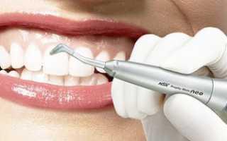 Ультразвуковое отбеливание зубов: цены, свойства