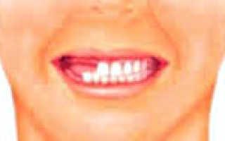 Первичная и вторичная, полная и частичная адентия: причины, лечение, профилактика