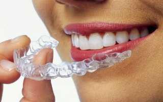Капы 3D Smile (3Д Смайл): описание, преимущества, отзывы, цены