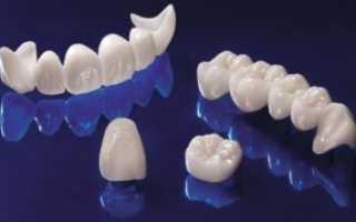 Как ставят коронку на зуб: восстановление штифтом и культевидной вкладкой, установка