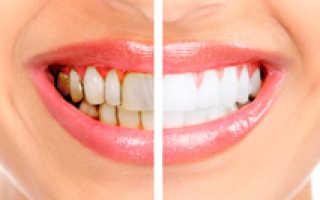 Зубной камень: как избавиться в домашних условиях и очистить зубы