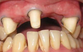 Что такое препарирование твердых тканей зубов: правила туннельной и лазерной препаровки