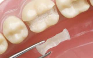 ИРОПЗ в стоматологии: что это такое, классификация по Миликевичу