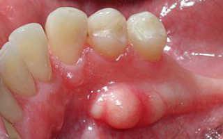 Что такое челюстной экзостоз, как убрать этот костный нарост