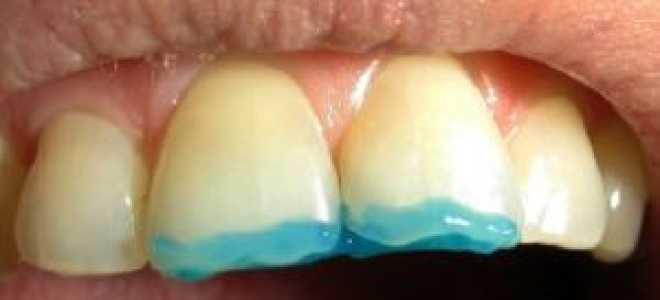 Композитная реставрация зубов фотополимерами: методы, отзывы