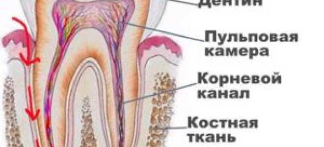Пульпит зуба: что это такое, симптомы, фото, лечение, классификация