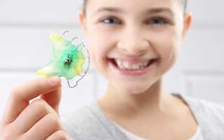 Пластинки (пластинки) для выравнивания зубов: фото до и после, цена, как работает
