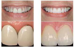 Запах из под коронки зуба: причины, что делать, профилактика