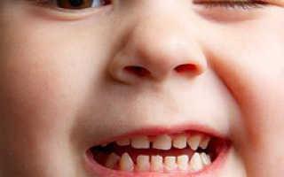 Бруксизм (скрежет и скрип зубами) у взрослых: причина и лечение