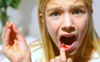 К чему снится кровь изо рта – плевать кровью во сне, кровоточит зуб, десны, губа, горло
