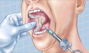 Мандибулярная анестезия: техника проведения по Берше Дубову, Верлоцкому и другие методы
