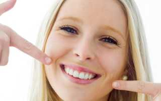 Рейтинг имплантов зубов по производителям: какие самые лучшие