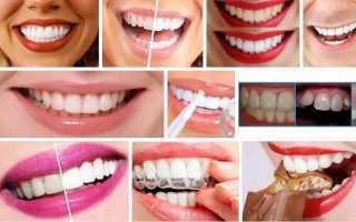 К чему снятся белые зубы – видеть во сне красивые, здоровые зубы по сонникам