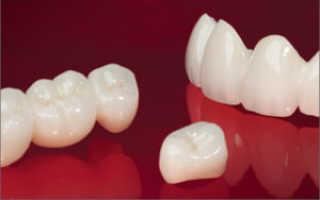 Фарфоровые коронки: этапы изготовления, стоимость зубов из стоматологического фарфора