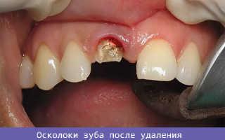 После удаления зуба остался осколок в десне: симптомы, что делать и чем это грозит