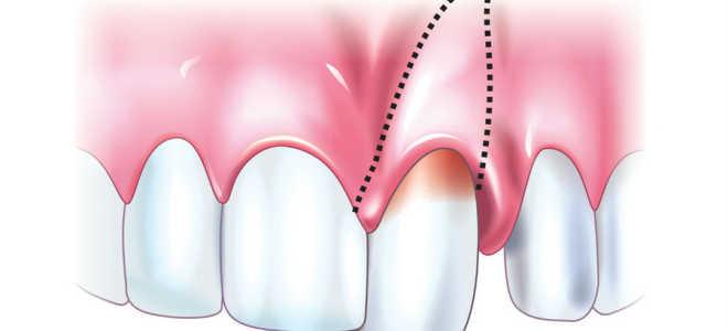 Полный, неполный и вколоченный вывих зуба: симптомы, лечение, последствия