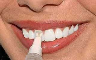 Мгновенное отбеливание зубов: лак, краска, корректор White enamel