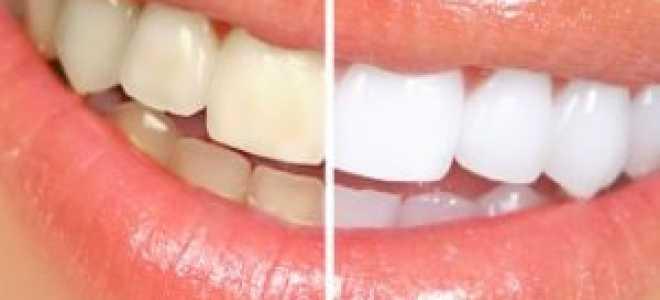 Композитное реставрационное отбеливание зубов, отзывы об осветлении