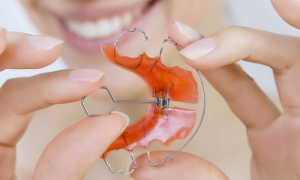 Пластины для выравнивания зубов и исправления прикуса у детей: разновидности, особенности