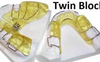 Ортодонтический аппарат Твин Блок (Twin Block): цели применения, конструкция, цена