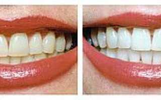 Химическое отбеливание зубов: отзывы, цена, до и после, виды (Opalescence)