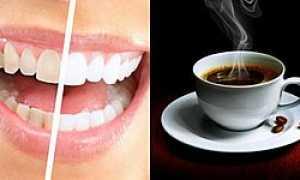 Пятна от кофе на зубах: налет, желтеют ли зубы от чая, полезные советы