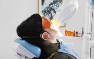 Фотоотбеливание зубов ультрафиолетом, лазерное, светодиодное и галогеновое
