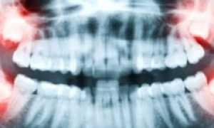 Причины, симптомы, лечение пульпита зуба мудрости и его удаление