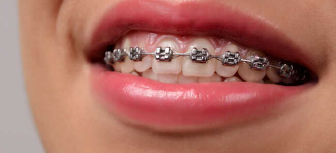 Металлические брекеты: стоит ли ставить, их преимущества