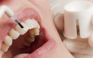Фторирование зубов в домашних условиях и профессиональное