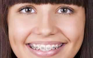 Сколько стоит поставить брекеты на зубы: цена на нижнюю и верхнюю челюсть