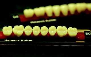 Искусственные зубы и их виды – выбор, установка, стоимость