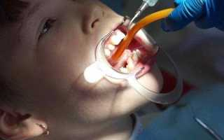 Подрезание (пластика) уздечки языка ребенку, взрослому и подростку: как и зачем