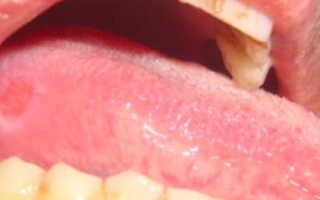 Чем лечить язвочки (болячки) на языке: причины, что можно сделать?