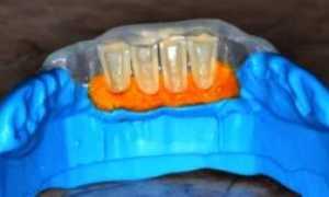 Что такое метод силиконового ключа в терапевтической стоматологии