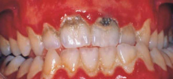 Зубная бляшка: состав, причины и этапы образования, профилактика