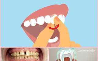 Чем укрепить десны, чтобы не шатались зубы? Узнайте из нашей статьи!