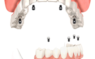 Имплантация всех зубов за 1 день – методы ALL-ON-4, ALL-ON-6 и базальная имплантация