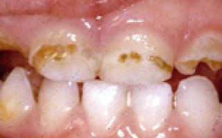 Гипоплазия эмали зубов: причины, лечение и профилактика