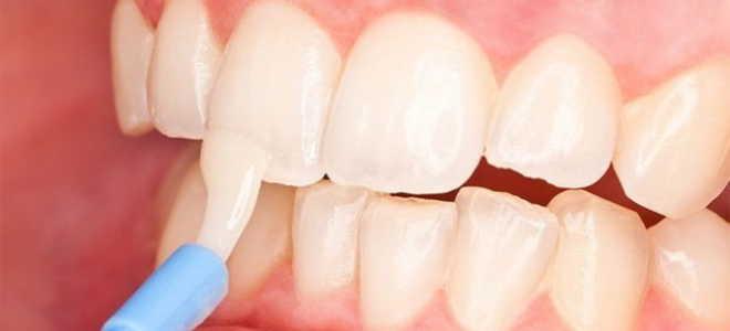 Как восстановить эмаль зубов в домашних условиях и у стоматологов