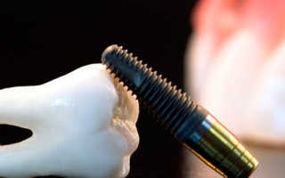 Как ставят имплантанты зубов — все этапы имплантации: видео, описание
